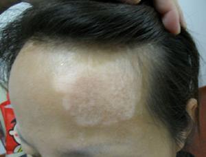 北京白癜风专科医院:女性患上白癜风要遵循哪些原则