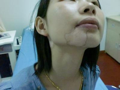 北京白癜风专科医院:哪些原因容易诱发女性白癜风