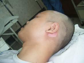 白癜风症状:哪些因素会诱发头部白癜风呢